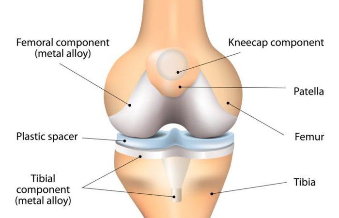 Total Knee Replacement dan penyebabnya