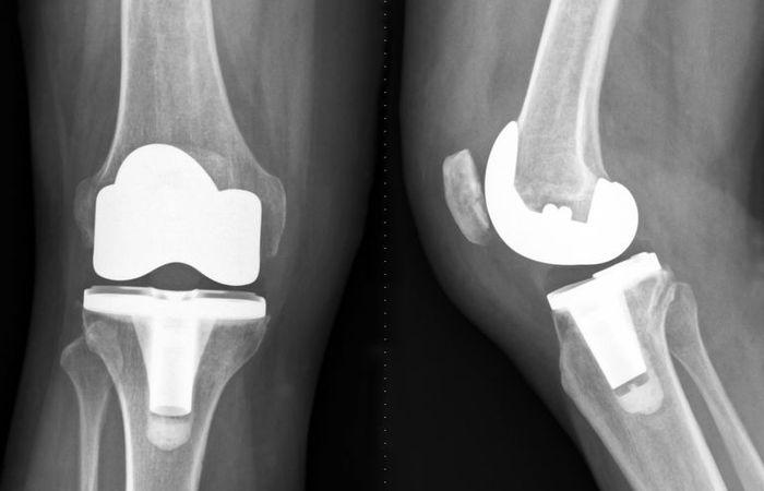 Total Knee Replacement dan Pasca Operasi