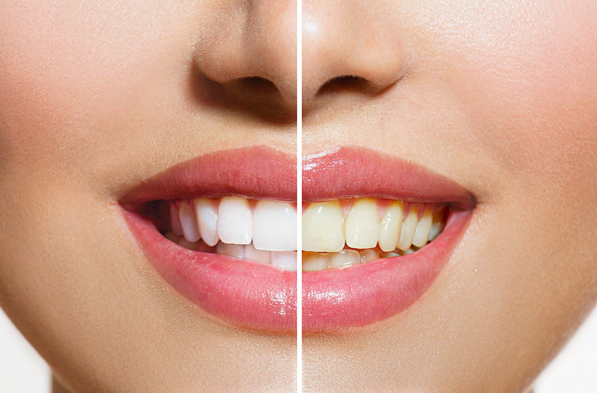 Tips Tips Kecantikan Gigi Agar Tidak Kuning Article Plimbi