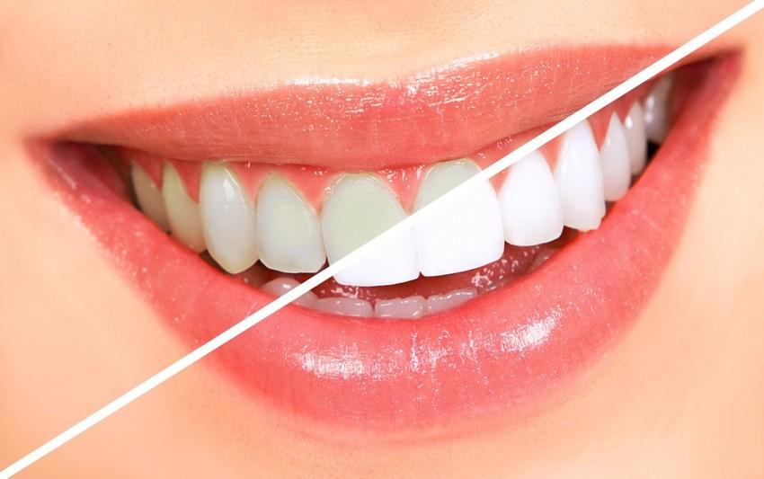 Ingin Memiliki Senyum Yang Menawan  Coba Tips Tips Kecantikan Gigi Secara  Alami Agar Lebih Putih 509bd9f656